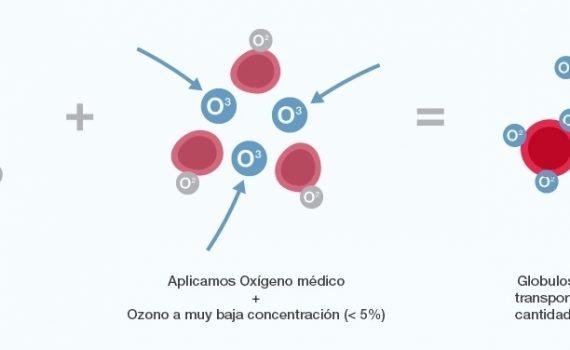 ozonoterapia2