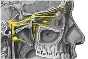 Cefalea en racimos en el nervio trigémino