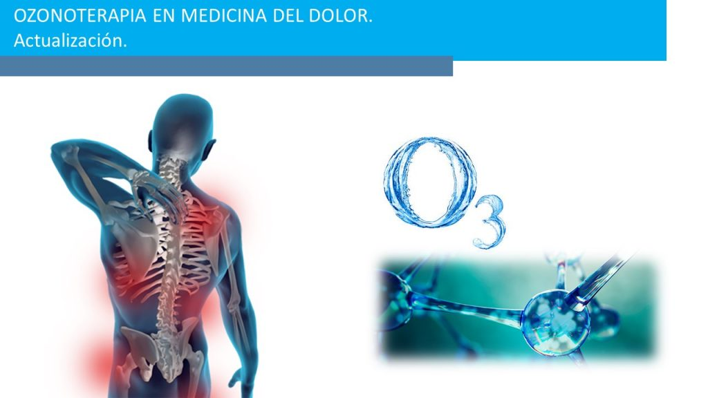 Ozonoterapia en Medicina del Dolor: Infiltraciones de Ozono y Ozonoterapia Sistémica