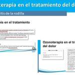 Ozonoterapia en el tratamiento del dolor. Osteoartritis de la rodilla