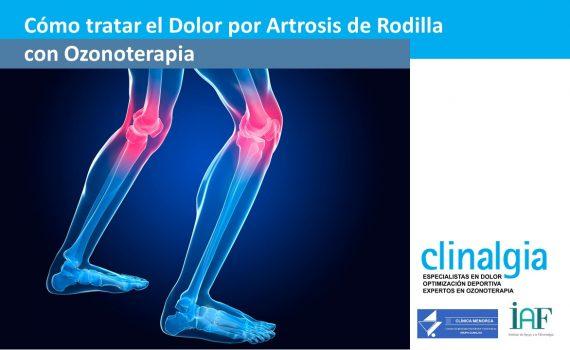 El Dolor por Artrosis de Rodilla