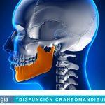 Disfunción craneomandibular