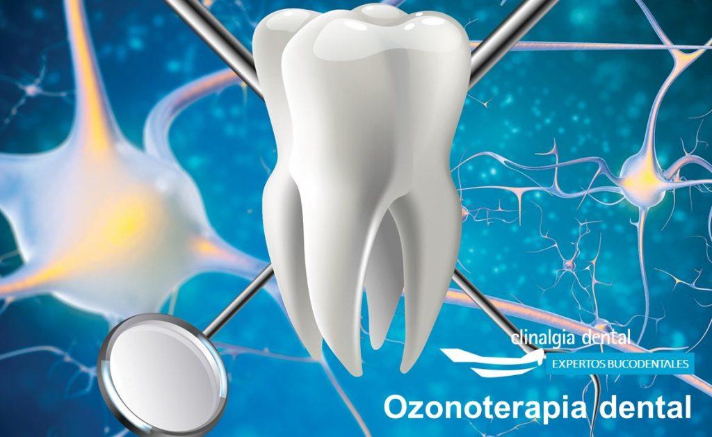 Ozonoterapia Bucodental | Clinalgia Dental