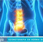 Ozonoterapia en Hernia Discal