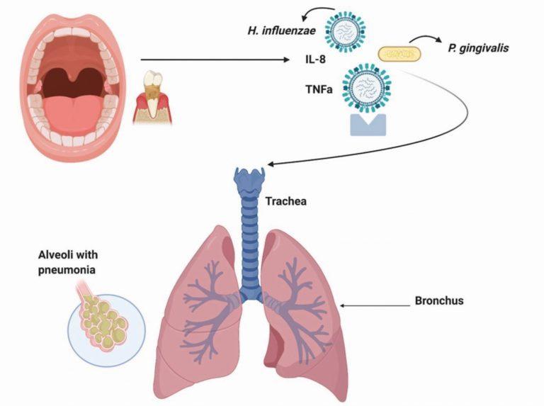 Influencia de la higiene oral en la prevención de infecciones respiratorias