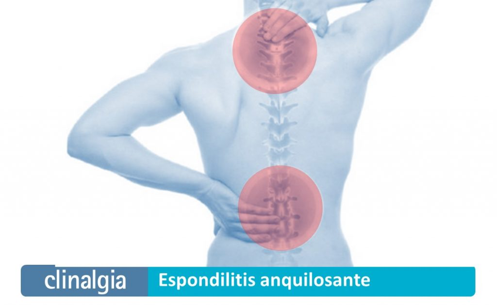 Espondilitis Anquilosante: Síntomas y Tratamiento