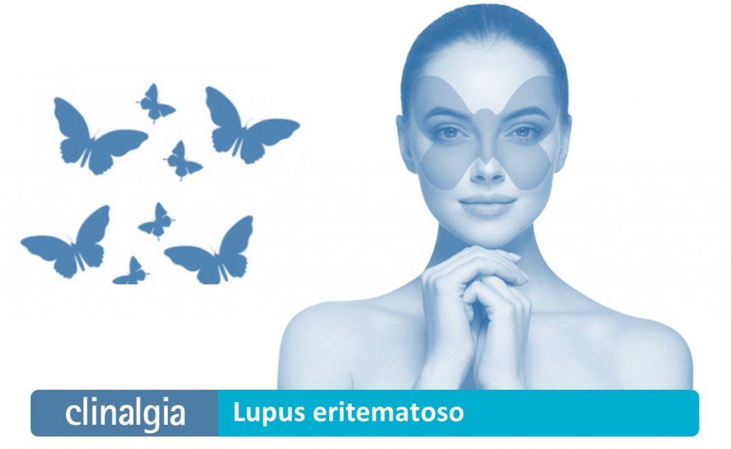 Lupus Eritematoso: Síntomas y Tratamiento