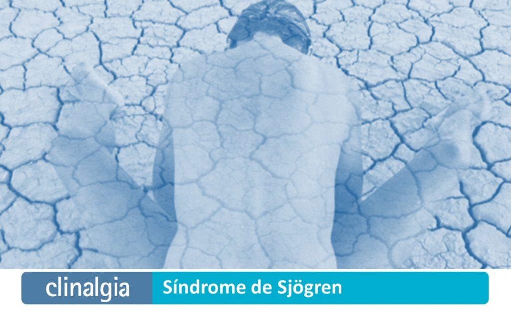 Síndrome de Sjögren: Síntomas y Tratamiento