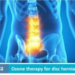 Ozone therapy for disc herniation